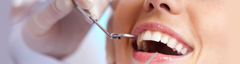 Sunshine-Dental-Group-Services2